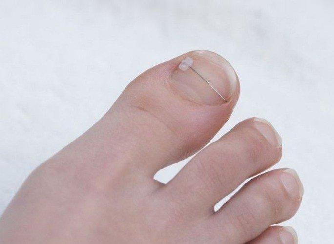 klamra Combiped na wrastające i wkręcające się paznokcie