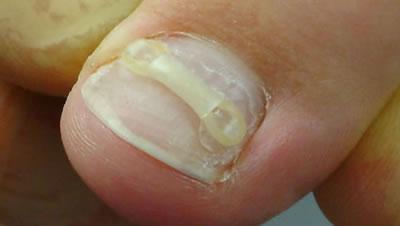 klamra ERKI na wrastające paznokcie składa się z dwóch plastikowych haczyków i gumowego krążka